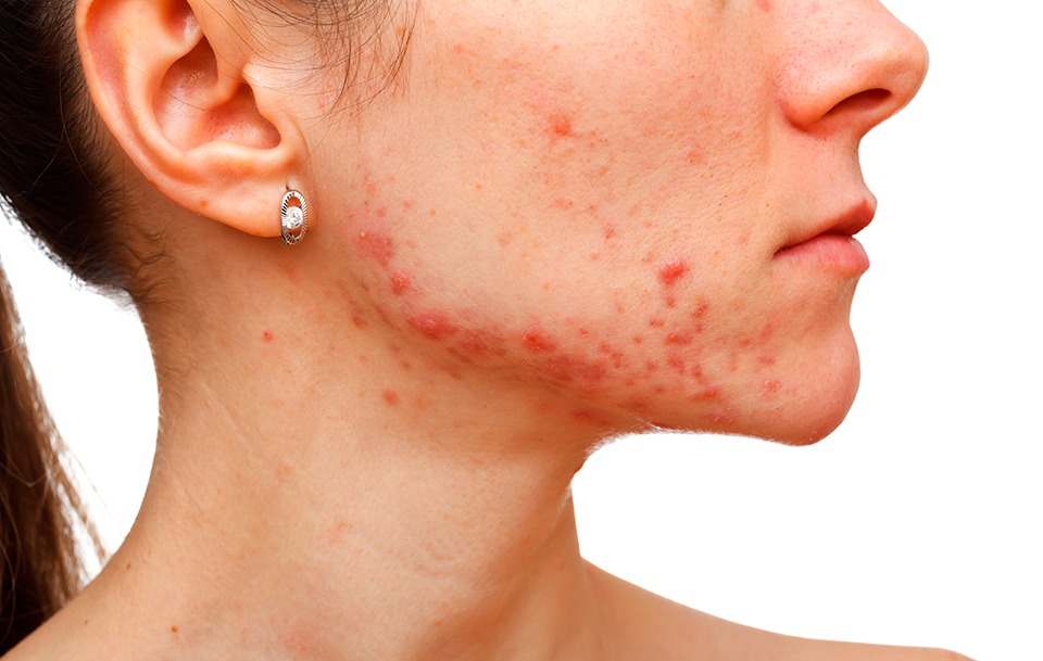 acne, granets, acne marcas, eliminar acne, andorra