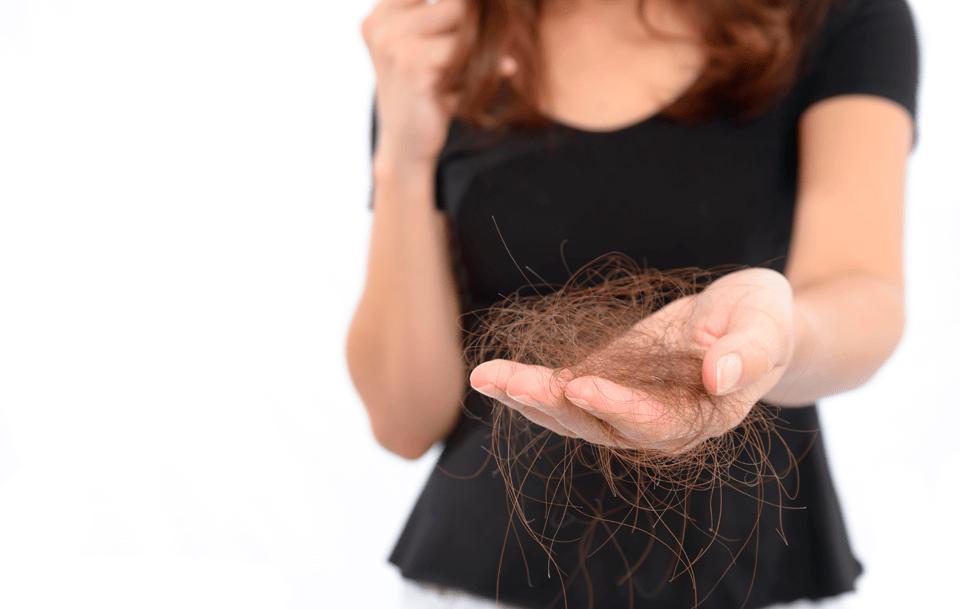 pelo, alopecia femenina, perdida pelo, caída cabello