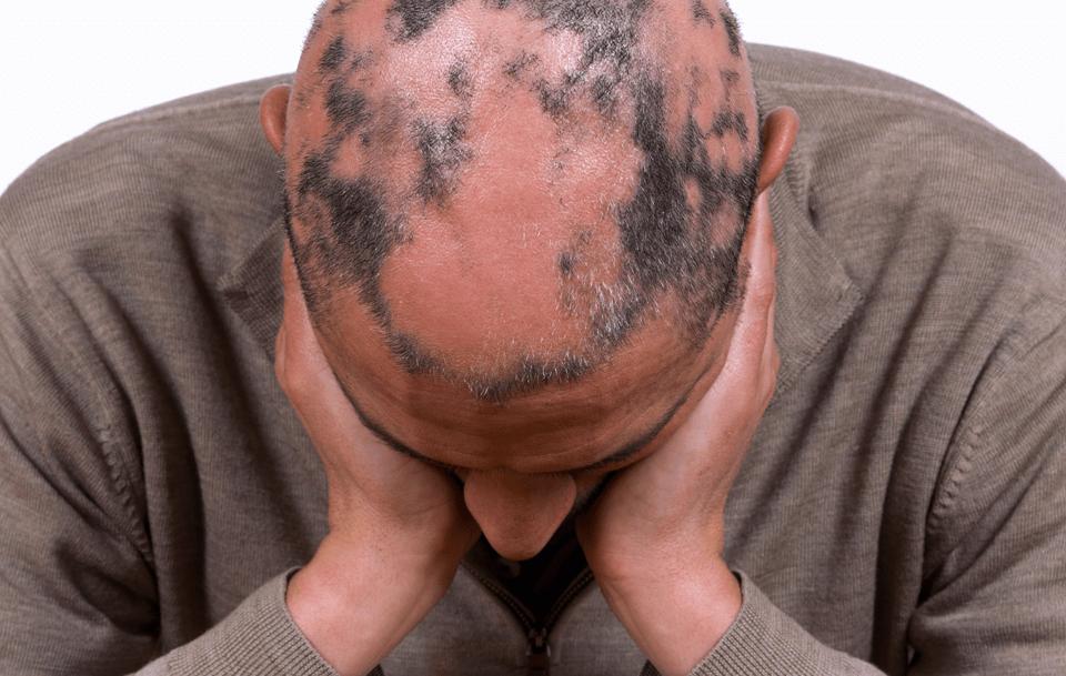 caida pelo, implant capilar, caiguda de cabell, calvicie, solucionar la alopecia, alopecia