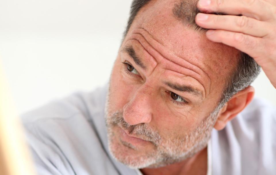implante capilar, calvicie, caida pelo, caída cabello