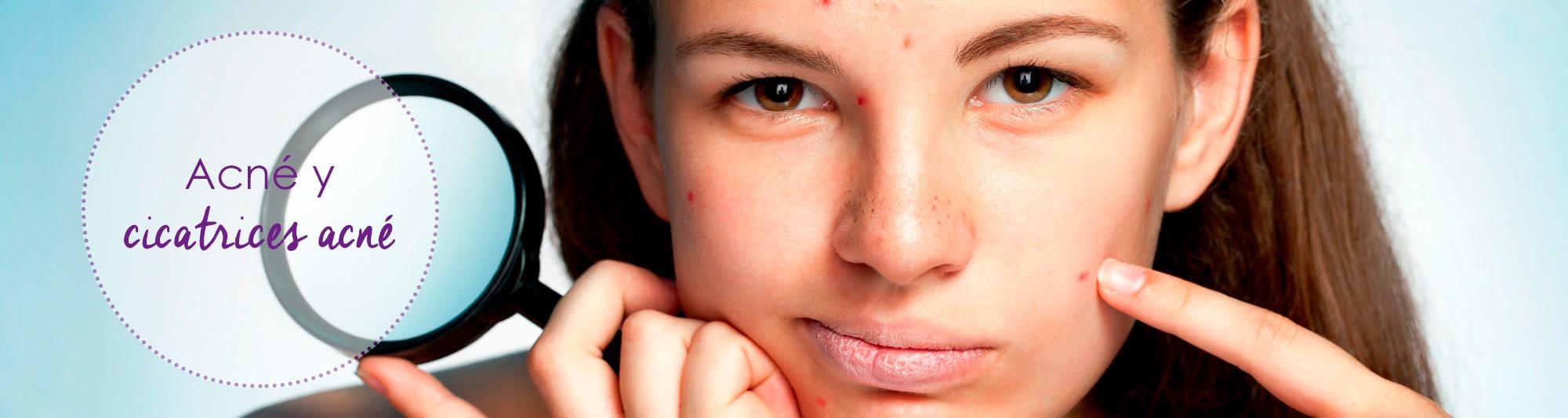 acne, marcas acne, cicatrices acne, cicatrices, acné, acne andorra