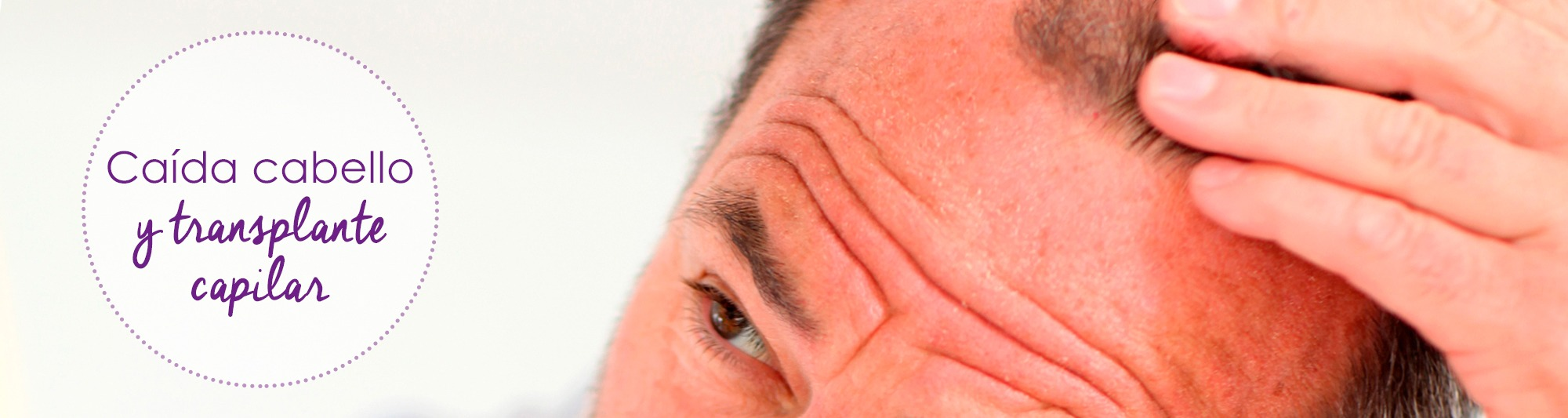 alopecia, caida de pelo, caida pelo, tratamiento pelo, prevencion alopecia