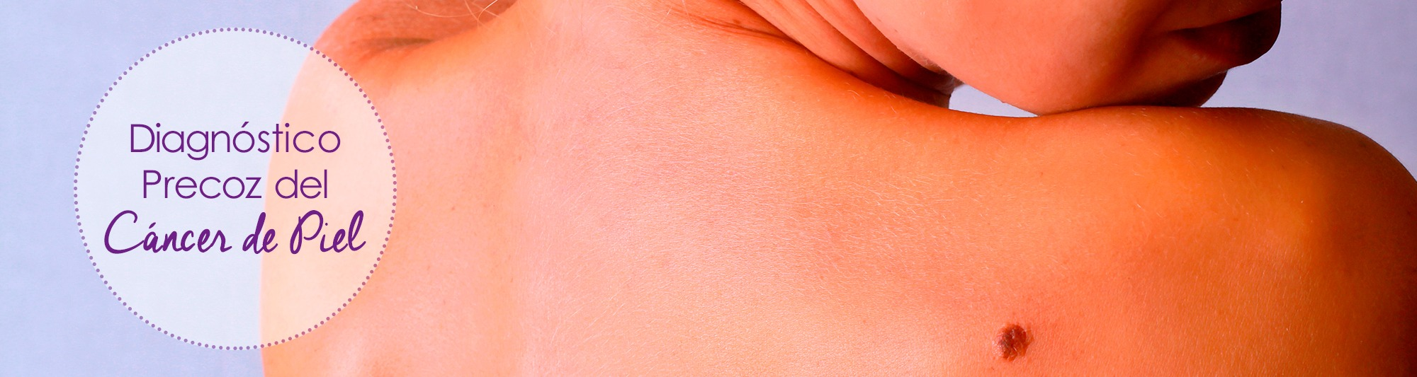 diagnostico cancer piel, cancer de piel, cancer piel, melanoma, melanomas
