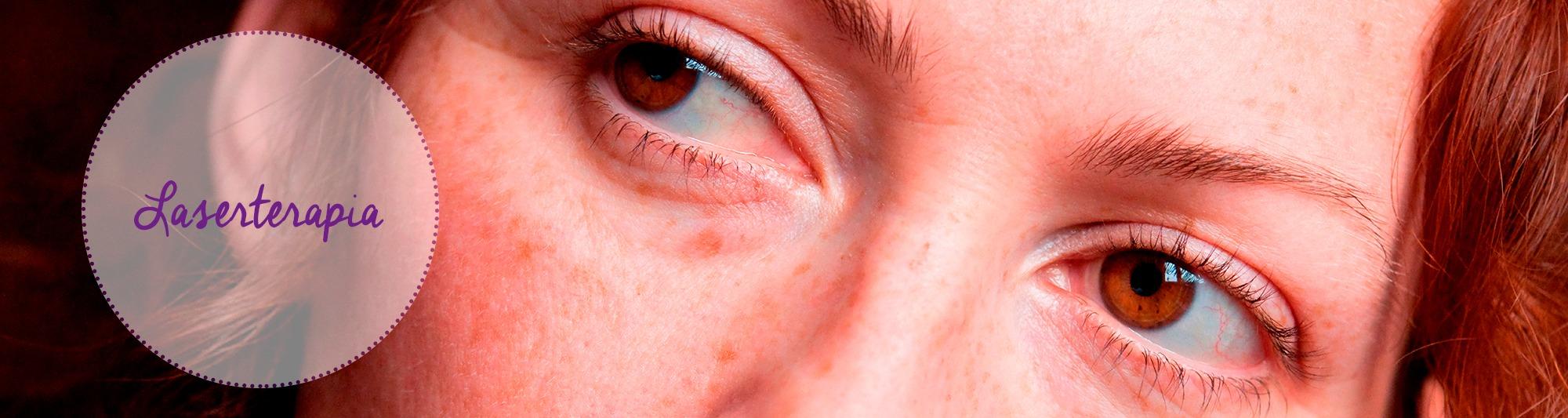 laserterapia, reumatologia, acne, cicatrices, andorra,