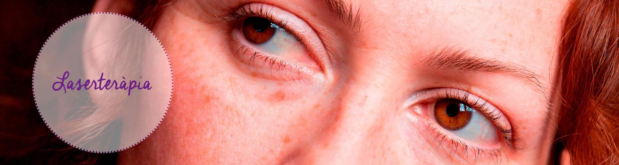 laserterapia, reumatologia, acne, cicatrius, andorra,