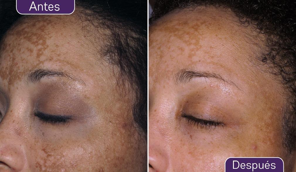 manchas en la piel, eliminar manchas cara, eliminar taques andorra, taques edat, marques edat, mans tacades, lentigens