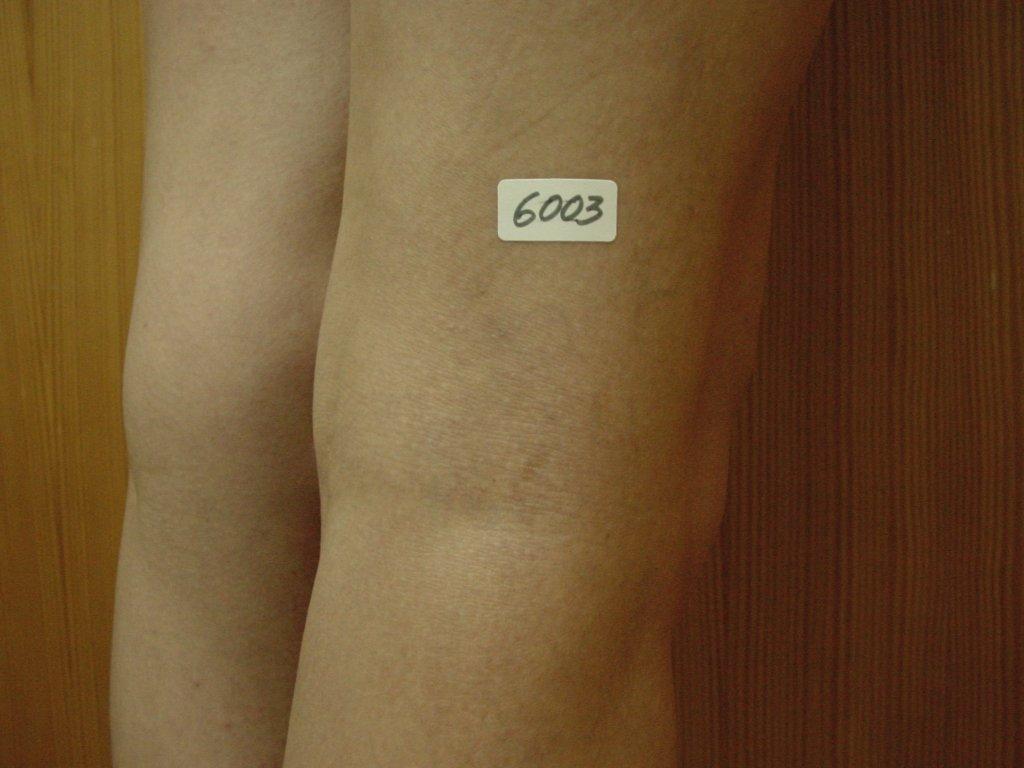 Varices despues, varius despres, varius cames, varius, flebologia
