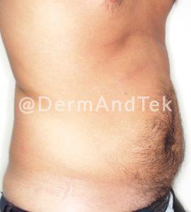 abdominoplastia, lifting abdomen, barriga hombre, correg