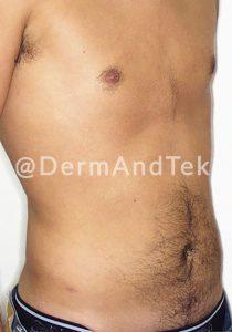 abdominoplastia, lifting abdomen, barriga hombre, reducir abdomen andorra