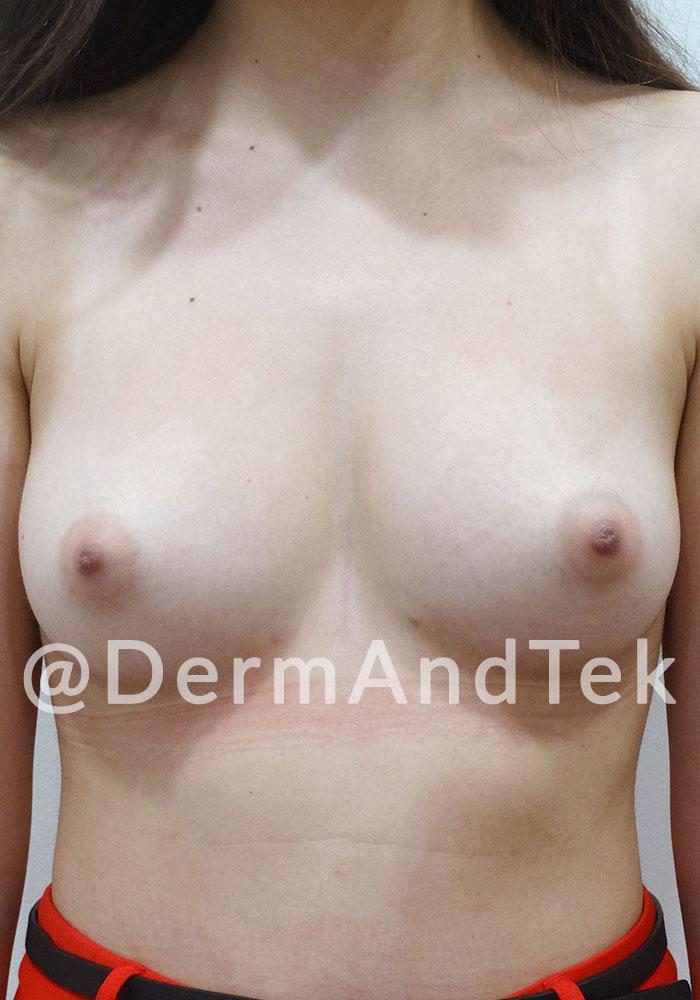aumento pecho, aumento mama, augment pit andorra, aumento pecho despues