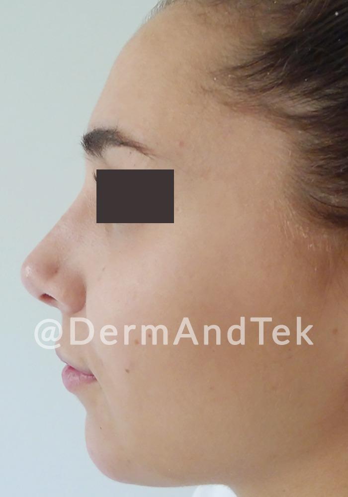 rinoplastia despues andorra, rinoplastia andorra, operació nas, operación nariz, resultado rinoplastia