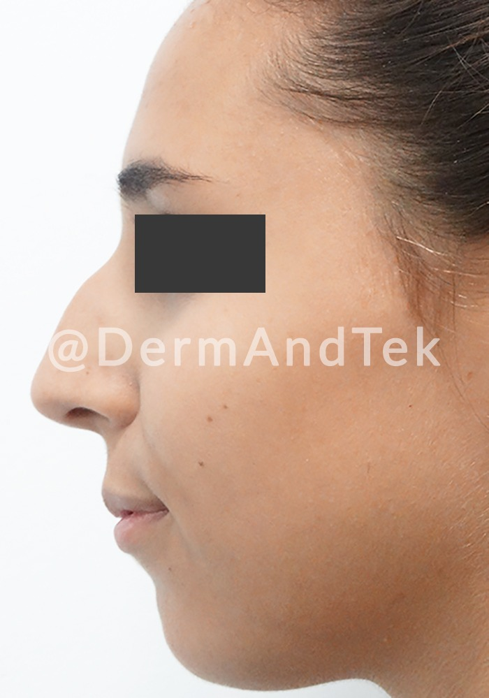 rinoplastia antes andorra, rinoplastia andorra, operació nas, operación nariz